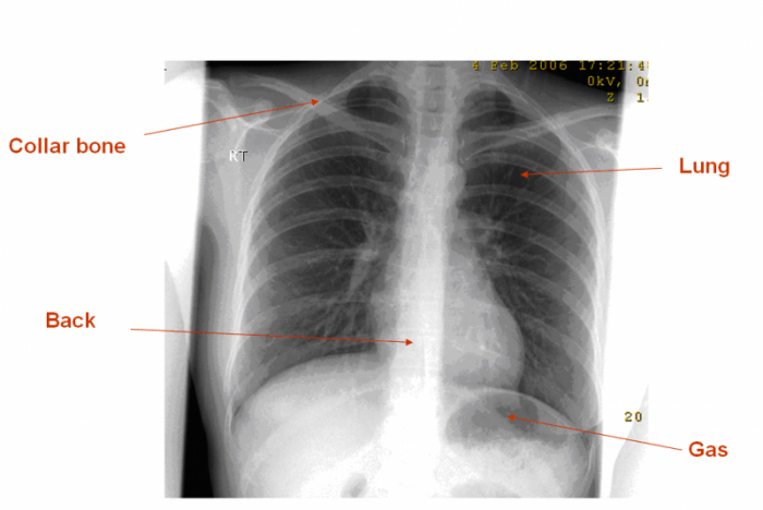 plain radiograph/x-ray - insideradiology, Human Body