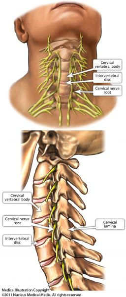 Image Guided Cervical Nerve Root Sleeve Corticosteroid Injection