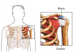 Bursal Injection - InsideRadiology