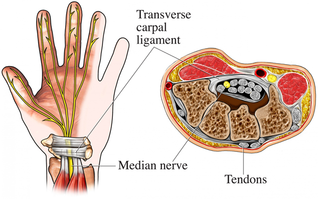 steroid injection wrist cpt